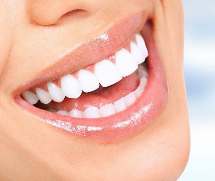 Doenças periodontais sem tratamento aumentam os riscos de infarto e AVC. Foto: Divulgação